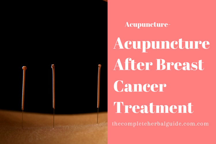 Acupuncture After Breast Cancer Treatment