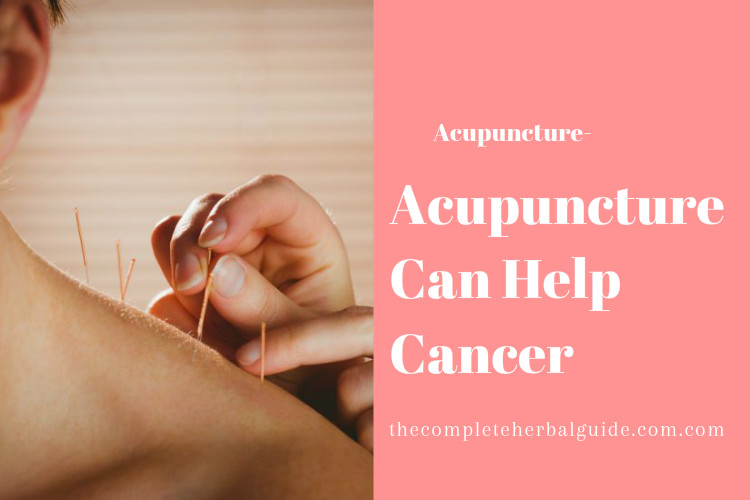 Acupuncture Can Help Cancer
