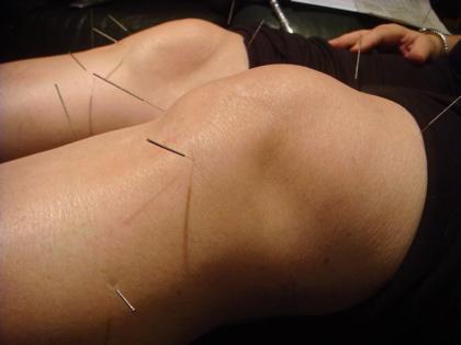 Knee-Acupuncture1-1