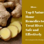 Top 8 Natural Home Remedies to Treat Hives Safe and Effectively