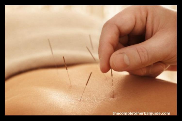 Ways Acupuncture Benefits Alzheimer Disease Patients