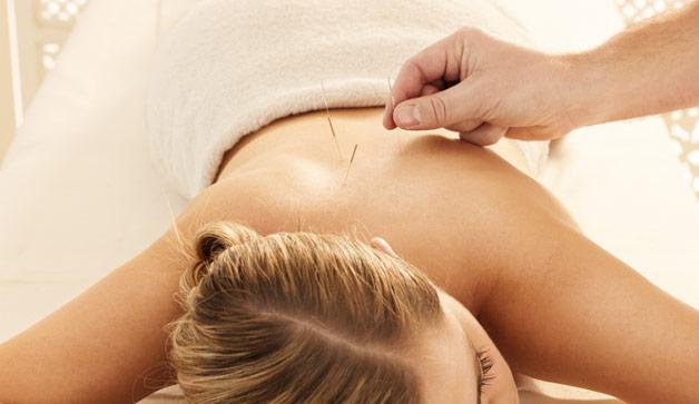 acupuncture-needles-628x363-comp-3298079