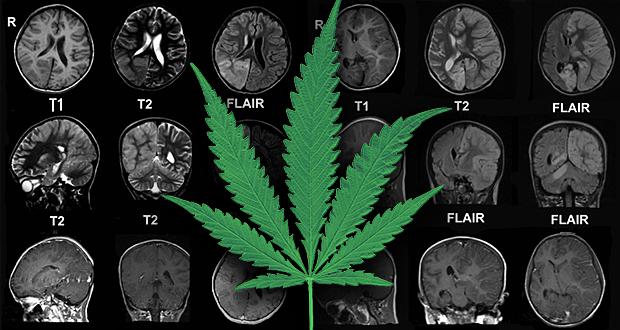 marijuana-epilepsy