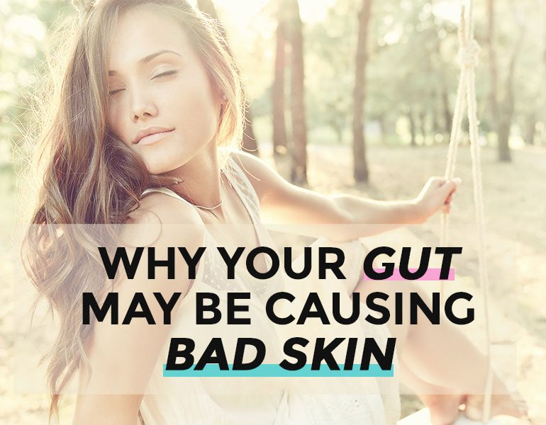 Acne Can Start In Your Gut