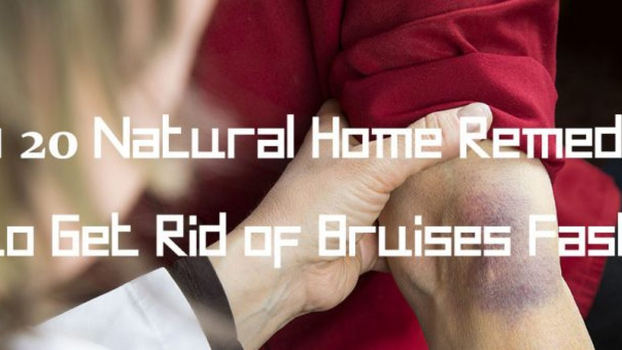 Top 20 Natural Home Remedies to Get Rid of Bruises Fast