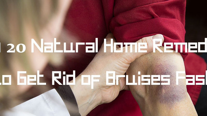 Top-20-Natural-Home-Remedies-to-Get-Rid-of-Bruises-Fast