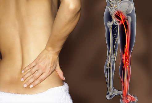 webmd_rm_photo_of_lower_back_pain
