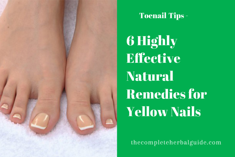 6 Highly Effective Natural Remedies for Yellow Nails