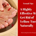A Highly Effective Way to Get Rid of Yellow Toenails Naturally