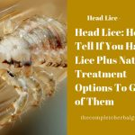 Head Lice: How To Tell If You Have Lice Plus Natural Treatment Options To Get Rid of Them