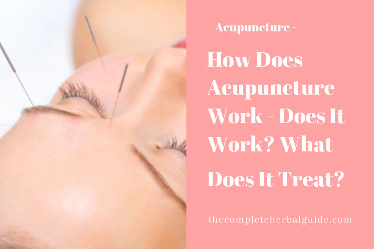 How Does Acupuncture Work - Does It Work? What Does It Treat?‎