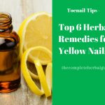 Top 6 Herbal Remedies for Yellow Nails