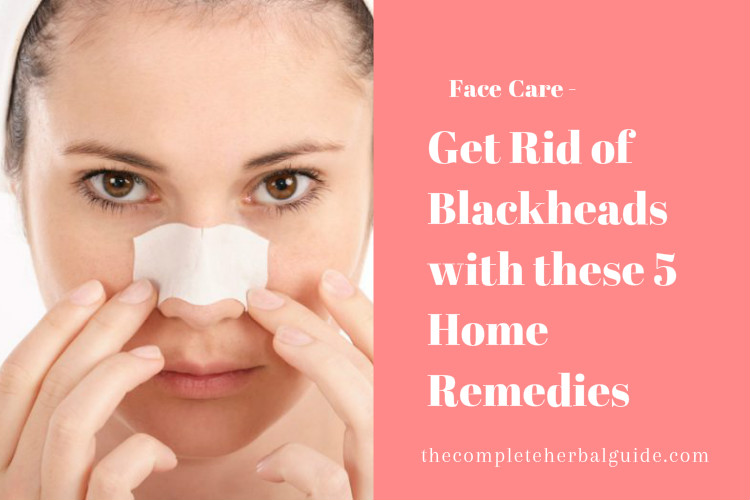 Get Rid of Blackheads with these 5 Home Remedies