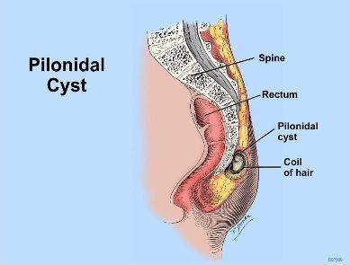 Pilonidal-Sinus-Structure