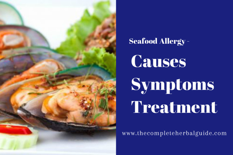seafood allergies