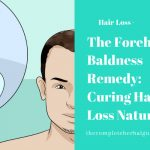 The Forehead Baldness Remedy: Curing Hair Loss Naturally