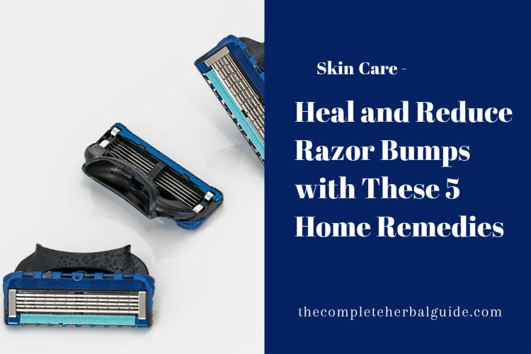 Heal and Reduce Razor Bumps with These 5 Home Remedies