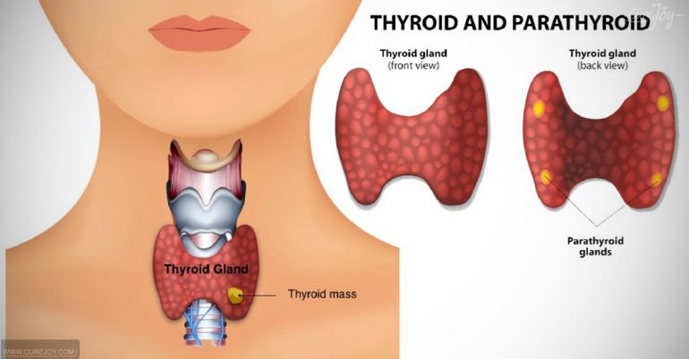 How-Do-Goitrogenic-Foods-Affect-The-Thyroid-770x402