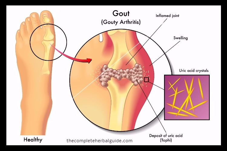 Natural Ayurvedic Home Remedies for Gout