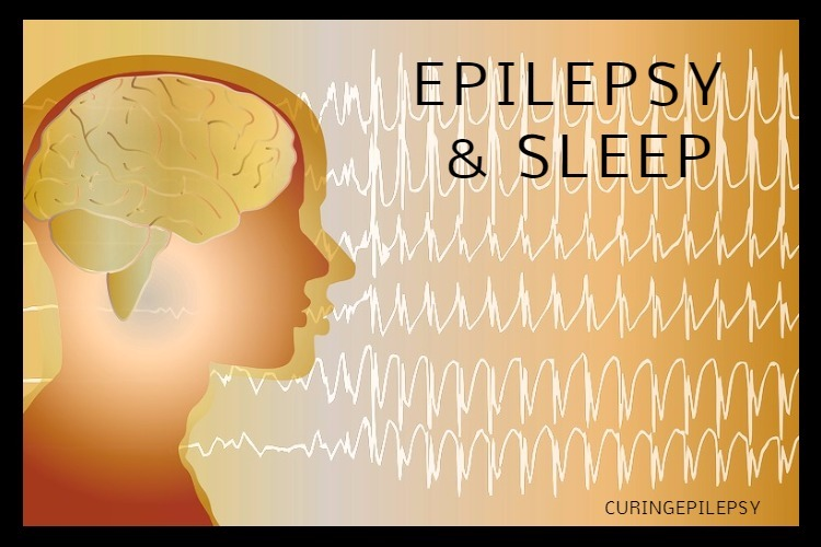 EPILEPSY AND SLEEP