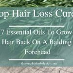 Top Hair Loss Cures- 7 Essential Oils To Grow Hair Back On Balding Forehead