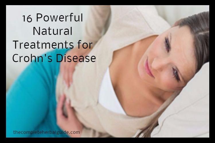 16 Powerful Natural Treatments for Crohn's Disease