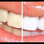 Coffee Stained Teeth: 5 Ways to Save your Teeth from Coffee Stains