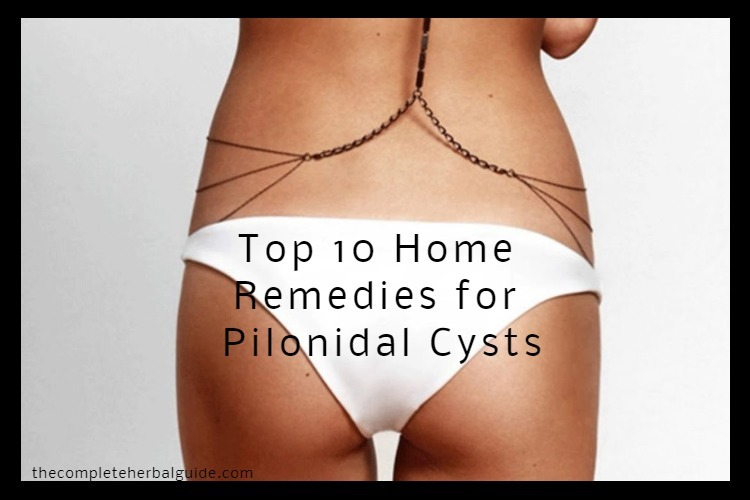 Top 10 Home Remedies for Pilonidal Cysts