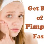 Home Remedies for How to Get Rid of Pimples Fast