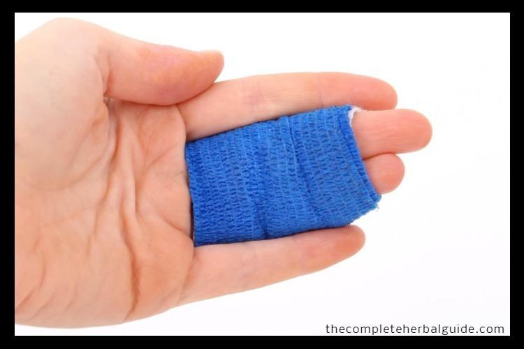 scar wound