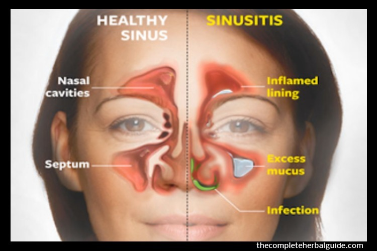 Why a Deviated Septum Can Lead to Chronic Sinus Infections
