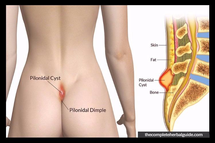 healing pilonidal cyst