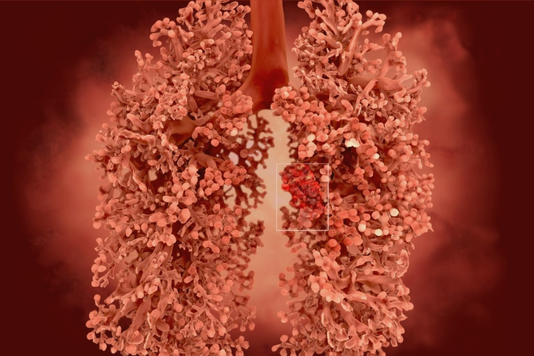 Mesothelioma Health Care Management Tips for Sufferers